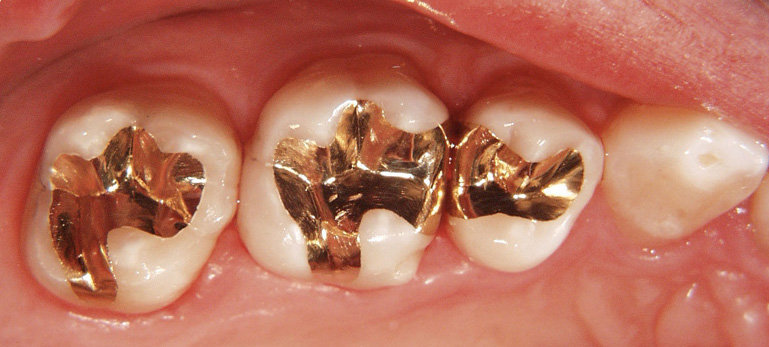 Global Amalgam Filling in Dental Restoration Market 2021 Analysis By  Emerging Trends, Industry Share, Top Impacting Factors, Key Manufactures,  Applications and Forecasts Up To 2026 – The Bisouv Network